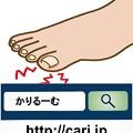 写真: 巻き爪はどう治療するのだろう?