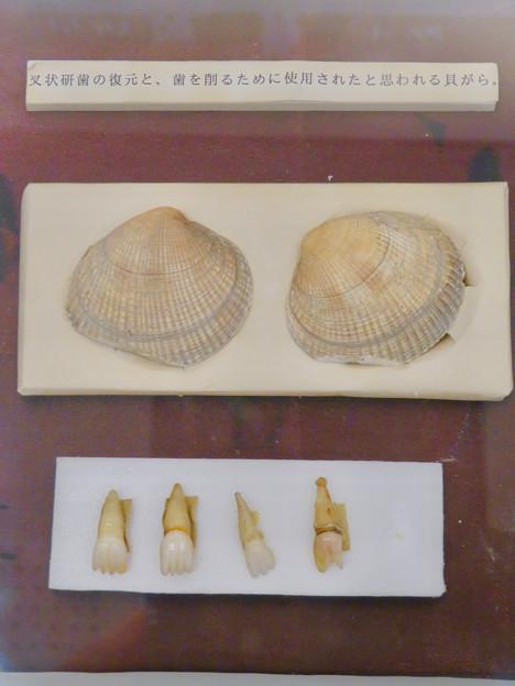 愛知県歯科医師会館「歯の博物館」No - 15:叉状研歯(さじょうけんし)するのに用いられたと見られる貝がら