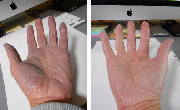 手の色が変!