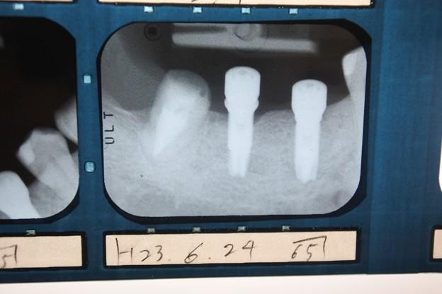 2011年6月の2度目の手術時のレントゲン写真