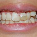 写真: 折れた前歯